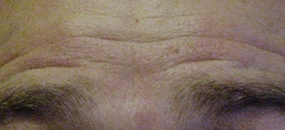 Before Botox Wrinkle Reduction Treatment