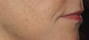 After Sculptra Skin Treatment