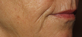 Before Sculptra Skin Treatment