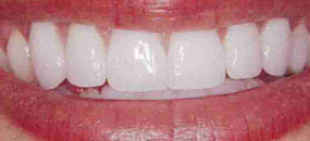 A closeup of teeth after porcelain veneers are fitted