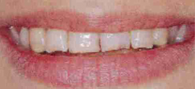 A closeup of teeth before porcelain veneers are fitted